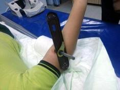Kapı kolu, dirseğine saplandı